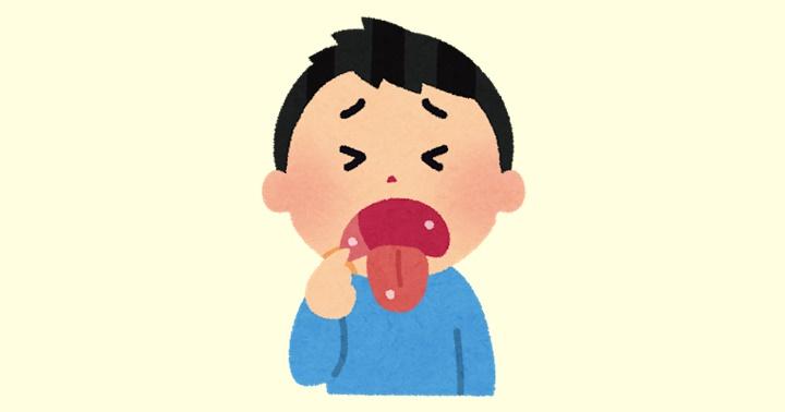 口内炎 治療